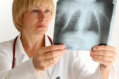 Табачный дым вызывает болезнь лёгких