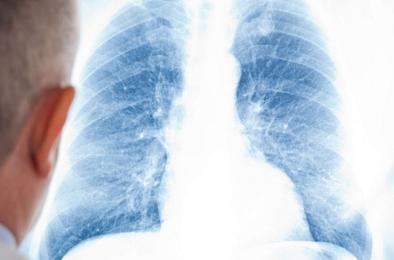 Обязали провериться на туберкулез